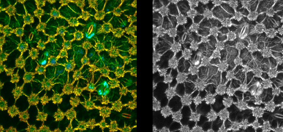 Images taken from the same autofluorescent plant leaf sample. Left: taken using FLIM. Right: taken using maximum intensity projection (MIP) imaging, The FLIM image shows areas that have the same brightness but very different lifetimes, which are not shown in the MIP image.